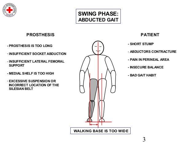 Gait deviations transtibial prosthesis wvu dissertations