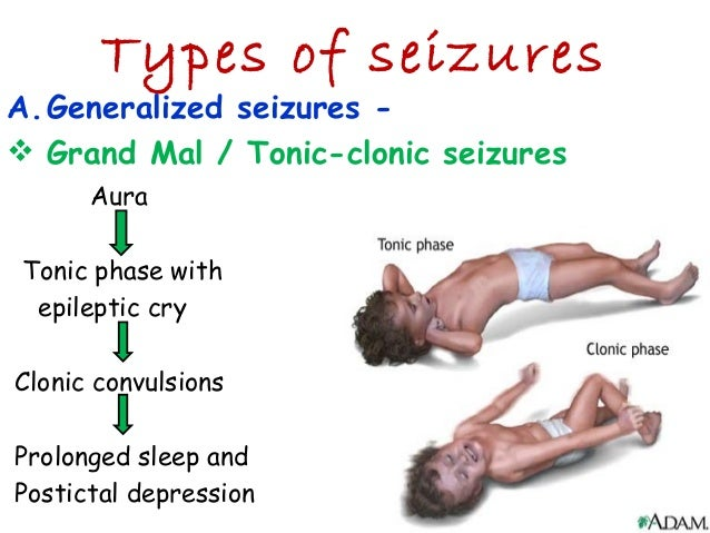 seizures in adults jpg 1200x900