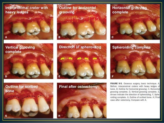 gingival curettage