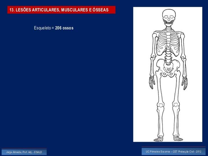 13. LESÕES ARTICULARES, MUSCULARES E ÓSSEAS                         Esqueleto = 206 ossosJorge Almeida, Prof. Adj. - ESALD...
