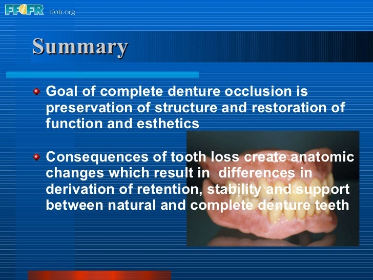 13.natural vs. complete centure occlusion