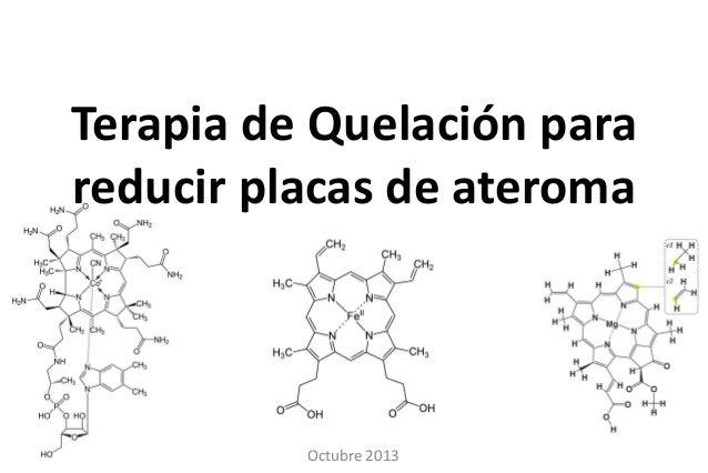 Terapia de Quelación para reducir placas de ateroma  Octubre 2013