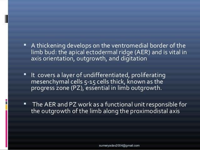 common congenital deformities of hand Slide 3