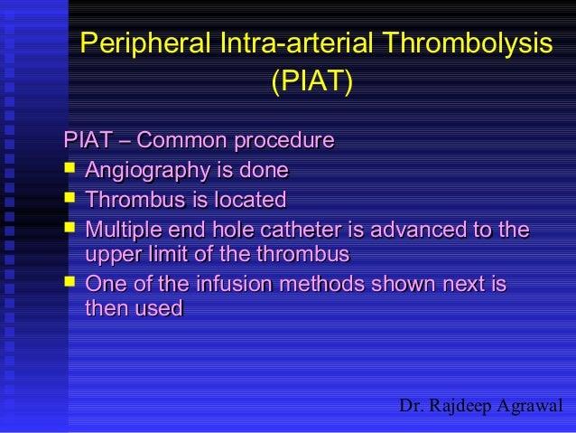 Dr. Rajdeep Agrawal Peripheral Intra-arterial Thrombolysis (PIAT) PIAT – Common procedurePIAT – Common procedure  Angiogr...