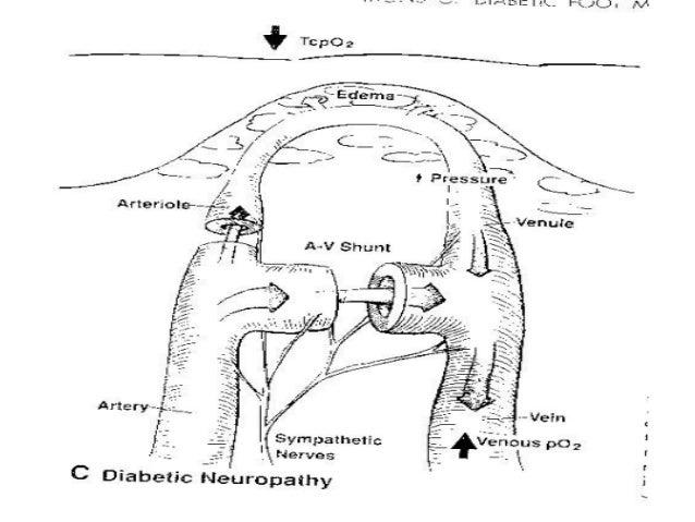 1362571948 diab cranial auto neuropathy