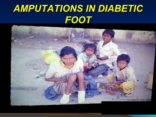 AMPUTATIONS IN DIABETICAMPUTATIONS IN DIABETIC FOOTFOOT
