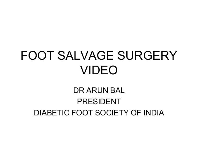 FOOT SALVAGE SURGERY VIDEO DR ARUN BAL PRESIDENT DIABETIC FOOT SOCIETY OF INDIA