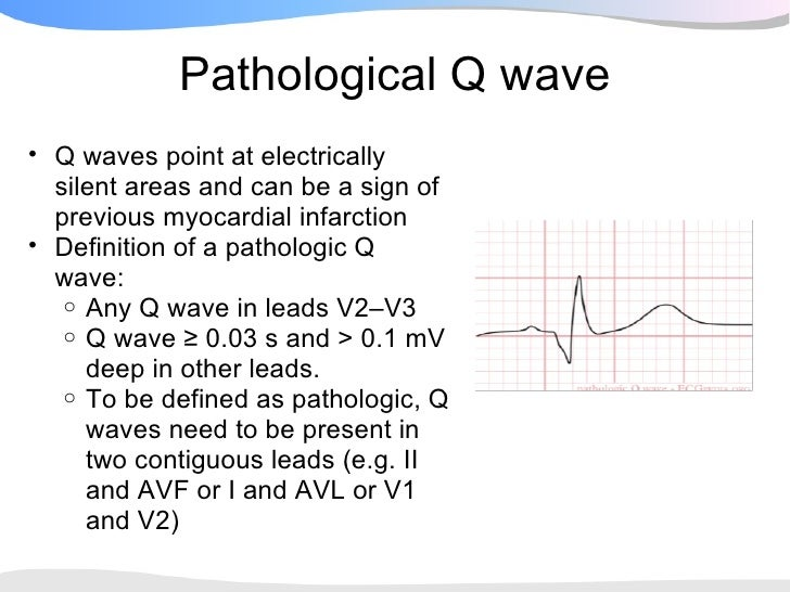 pathological q wave q waves point at electrically silent areas