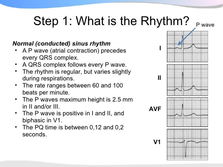 What is an example of normal sinus rhythm?
