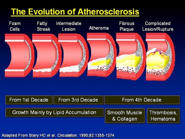 pathophysiology of ischemic heart disease pdf