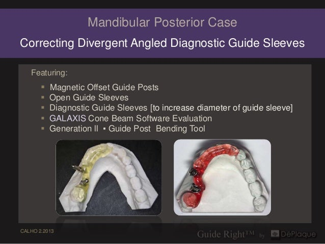Mandibular Posterior CaseCorrecting Divergent Angled Diagnostic Guide Sleeves   Featuring:        Magnetic Offset Guide P...