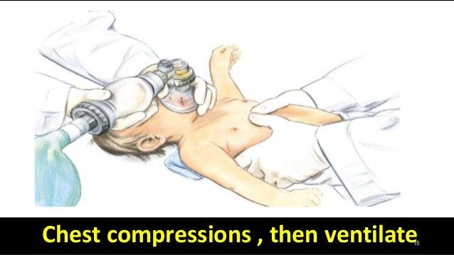 15Chest compressions , then ventilate