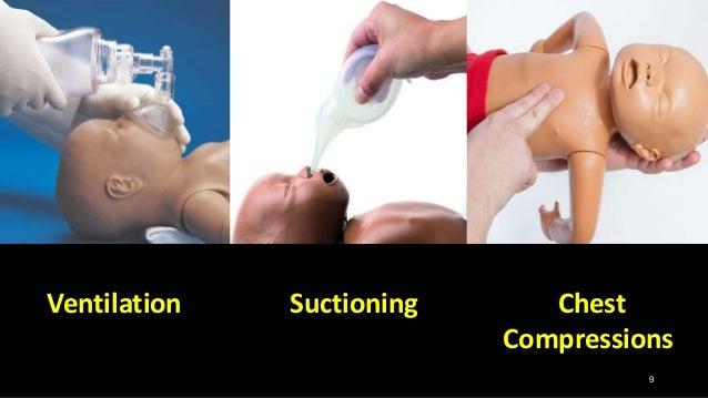 Chest Compressions 9 SuctioningVentilation