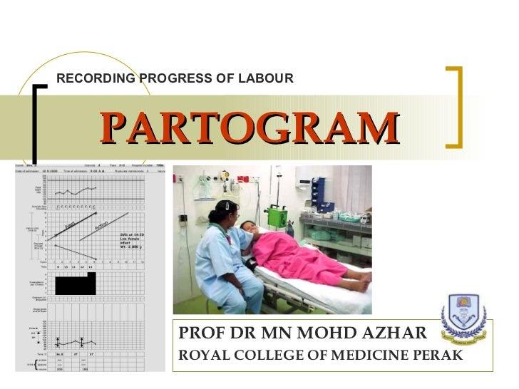 PARTOGRAM PROF DR MN MOHD AZHAR ROYAL COLLEGE OF MEDICINE PERAK RECORDING PROGRESS OF LABOUR
