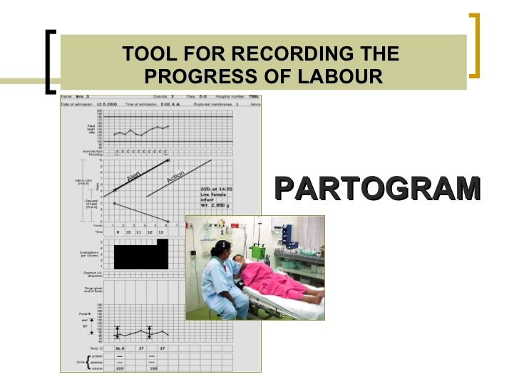 Effect of partogram use on outcomes for women in ...