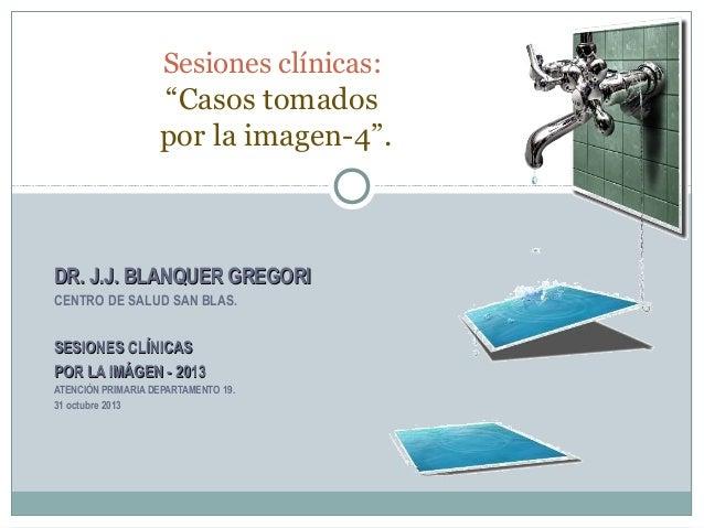 """Sesiones clínicas:  """"Casos tomados por la imagen-4"""".  DR. J.J. BLANQUER GREGORI CENTRO DE SALUD SAN BLAS.  SESIONES CLÍNIC..."""