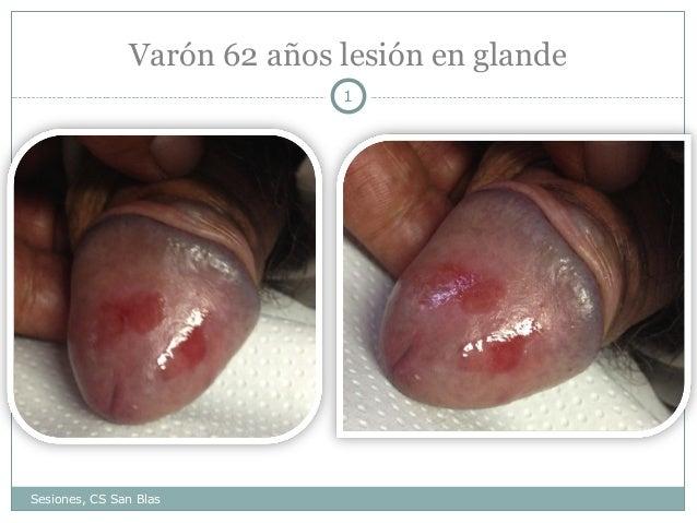 lesiones dermatologicas en pene