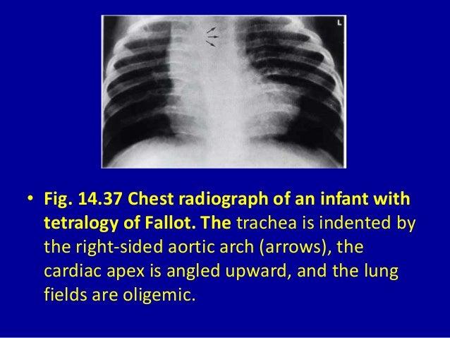 Echocardiogram with doppler study