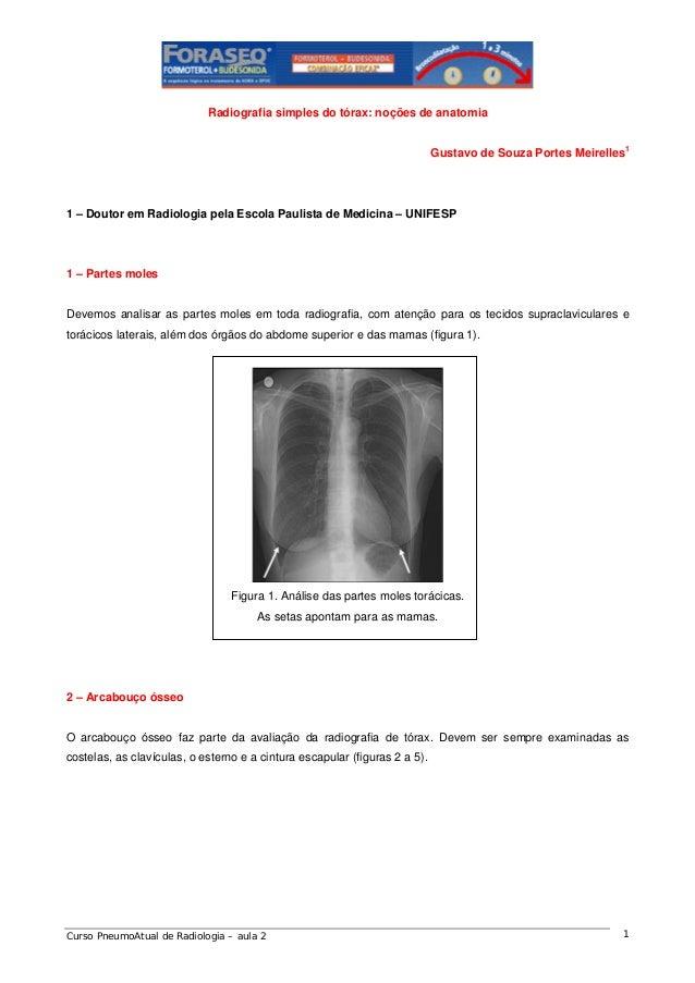 Radiografia simples do tórax: noções de anatomia Gustavo de Souza Portes Meirelles1  1 – Doutor em Radiologia pela Escola ...