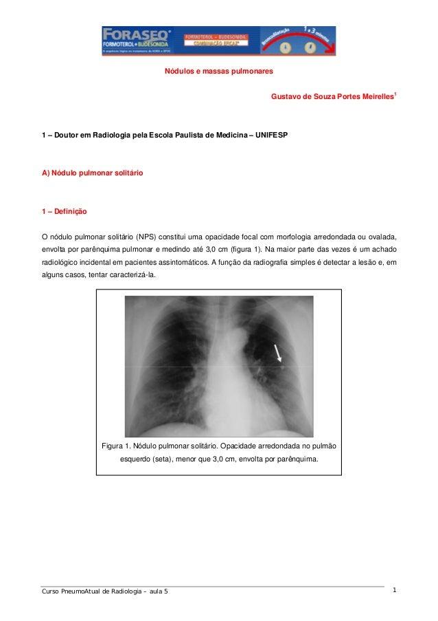 Nódulos e massas pulmonares Gustavo de Souza Portes Meirelles1  1 – Doutor em Radiologia pela Escola Paulista de Medicina ...