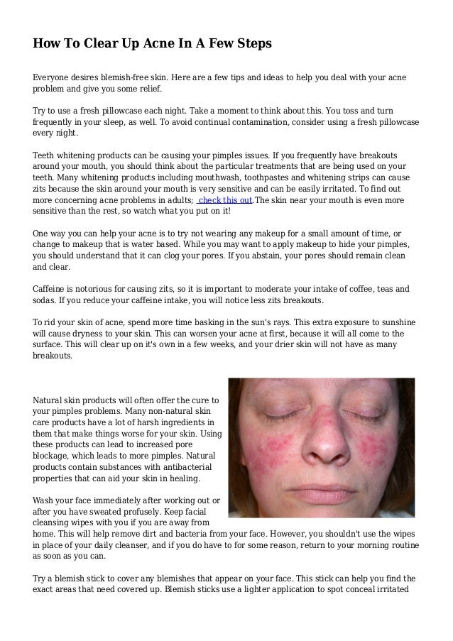How To Clear Up Acne In A Few Steps