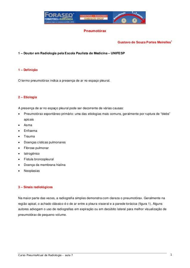 Pneumotórax Gustavo de Souza Portes Meirelles1  1 – Doutor em Radiologia pela Escola Paulista de Medicina – UNIFESP  1 – D...