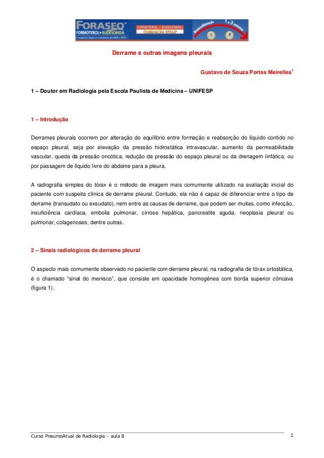 Derrame e outras imagens pleurais Gustavo de Souza Portes Meirelles1  1 – Doutor em Radiologia pela Escola Paulista de Med...
