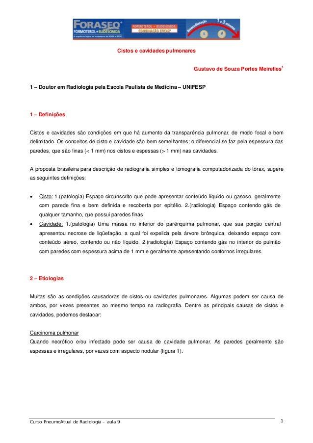 Cistos e cavidades pulmonares Gustavo de Souza Portes Meirelles1  1 – Doutor em Radiologia pela Escola Paulista de Medicin...