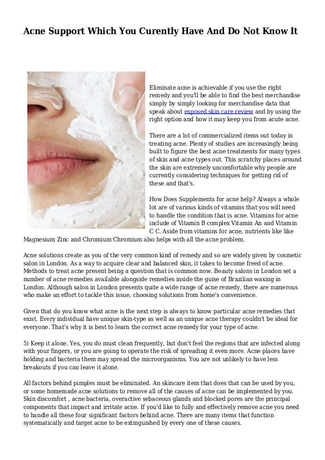 Acne Support Which You Curently Have And Do Not Know It  Eliminate acne is achievable if you use the right  remedy and you...