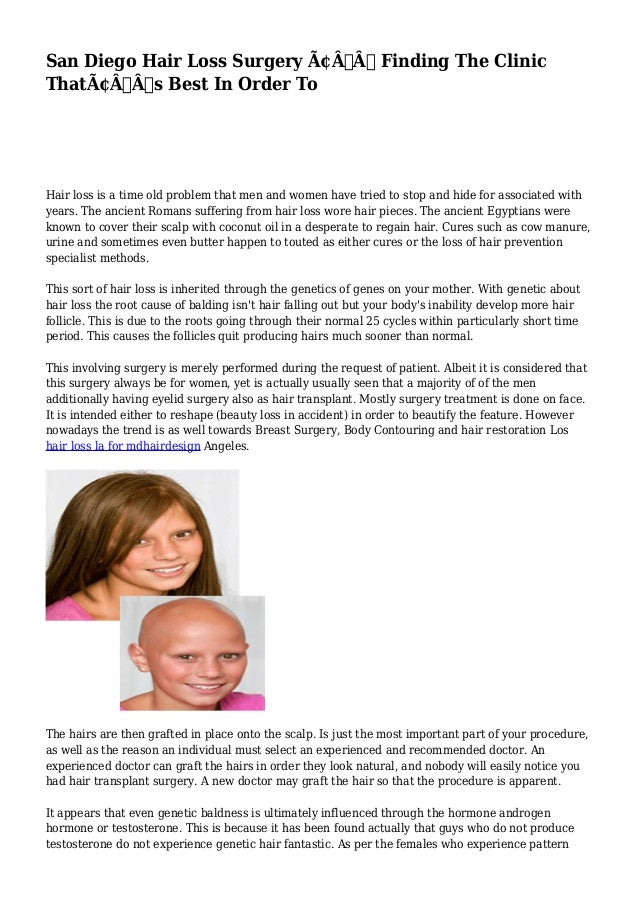 San Diego Hair Loss Surgery – Finding The Clinic  That's Best In Order To  Hair loss is a time old problem that ...
