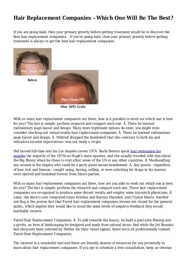 Hair Replacement Companies - Which One Will Be The Best?  If you are going bald, then your primary priority before getting...