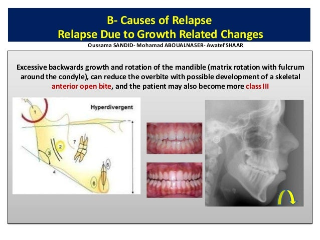 The cause of the malocclusion should be determined at the time of diagnosis and adequate treatment steps should be planned...