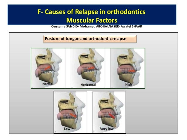 • oMoacroglossiaor largetongue Lateral tongue posture Anterior tongue posture F- Causes of Relapse in orthodontics Muscula...