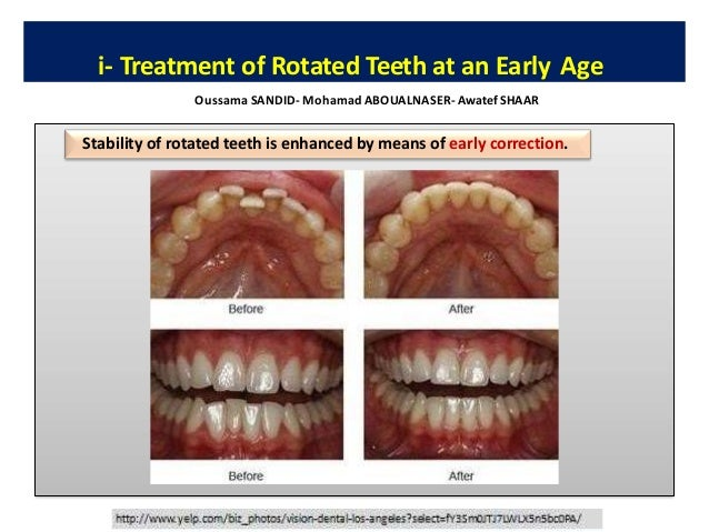 Late incisor crowding (post-adolescent crowding) is widely regarded as a normal maturation Current Controversies in Late I...