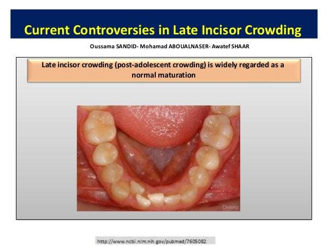 "• Singh, Gurkeerat. Textbook of orthodontics. JP Medical Ltd, 2015. • Florman, Michael, L. Jerrold, and M. Partovi. ""Indef..."