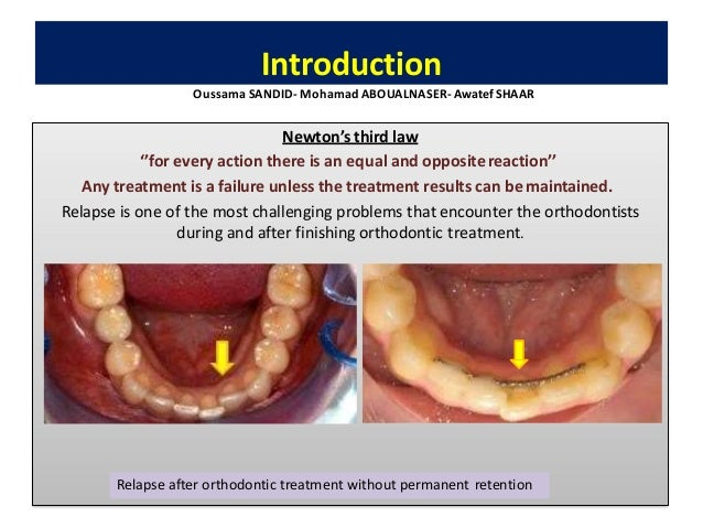 • It has been defined as the loss of any correction achieved by orthodontic treatment. • Is the return, following correcti...