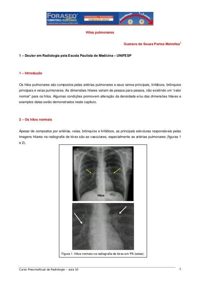 Hilos pulmonares Gustavo de Souza Portes Meirelles1  1 – Doutor em Radiologia pela Escola Paulista de Medicina – UNIFESP  ...