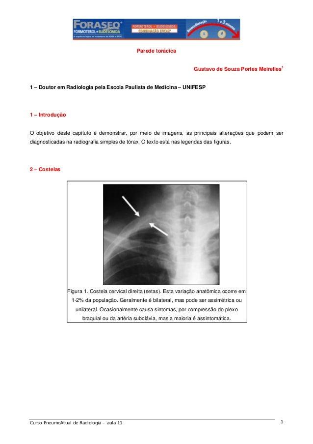 Parede torácica Gustavo de Souza Portes Meirelles1  1 – Doutor em Radiologia pela Escola Paulista de Medicina – UNIFESP  1...