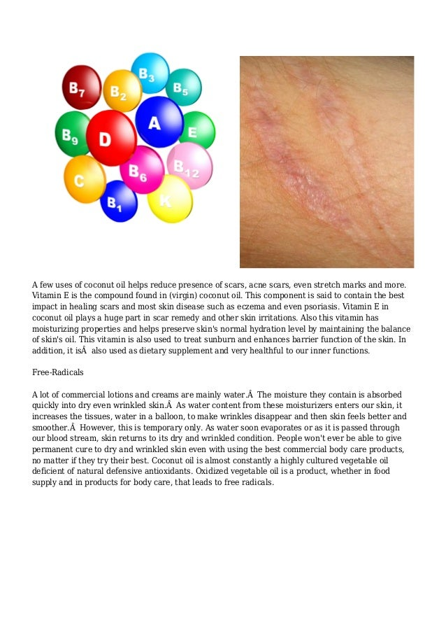 eczema and psoriasis at the same time