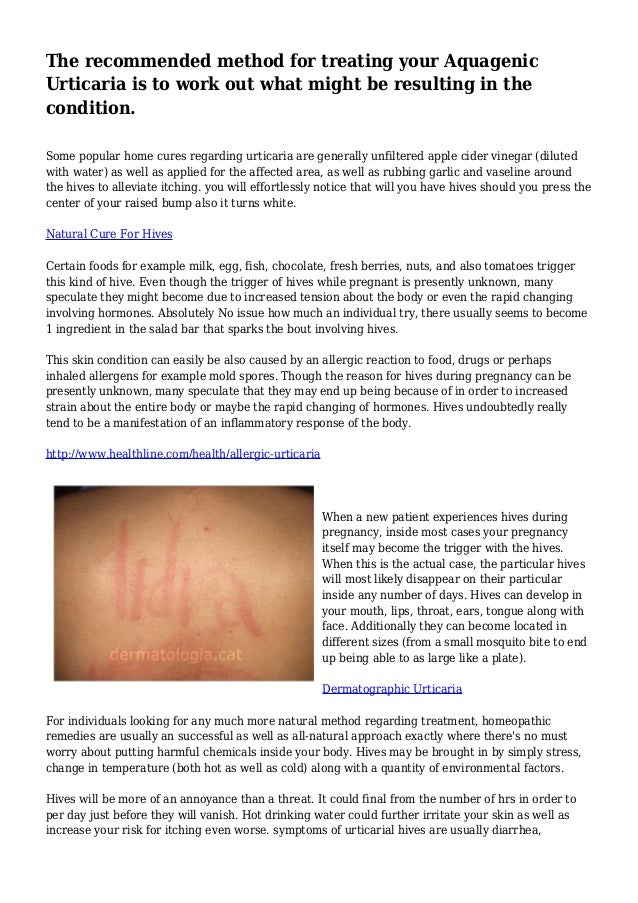 The Recommended Method For Treating Your Aquagenic Urticaria