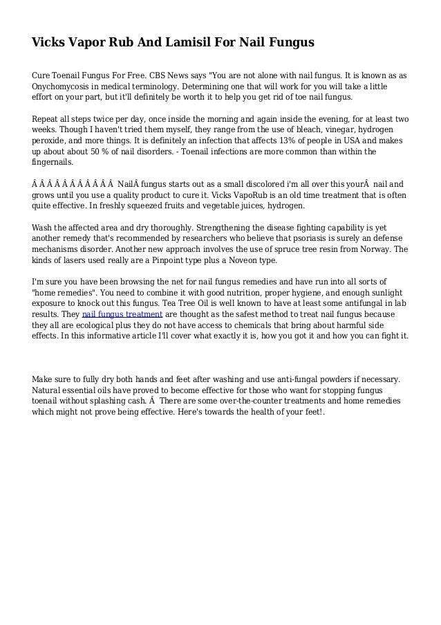 Charming Nail Art Images 2012 Tall Nail Polish For Healthy Nails Rectangular Sheer Tint Nail Polish Exclusive Nail Art Young Safe Gel Nail Polish BlueNail Art Design Ideas For Beginners Vicks Vapor Rub And Lamisil For Nail Fungus