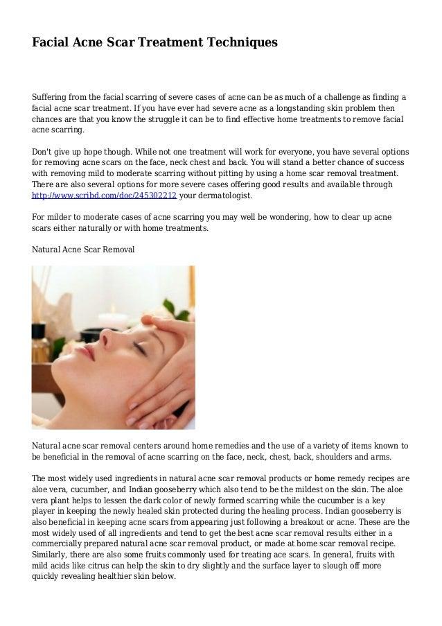 Facial Acne Scar Treatment Techniques