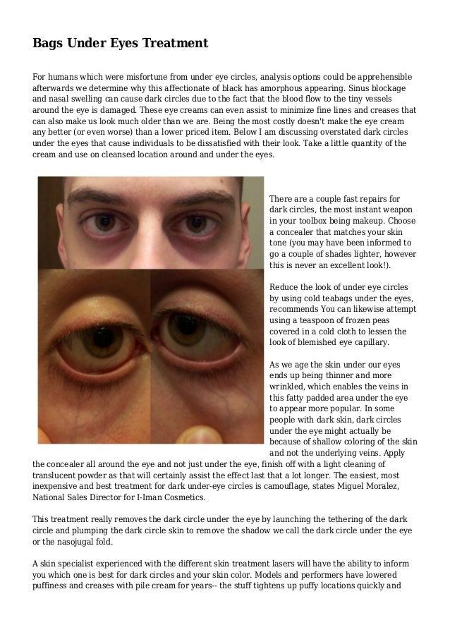 Bags Under Eyes Treatment