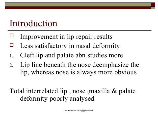 secondary deformities of cleft LIP AND NOSE Slide 2