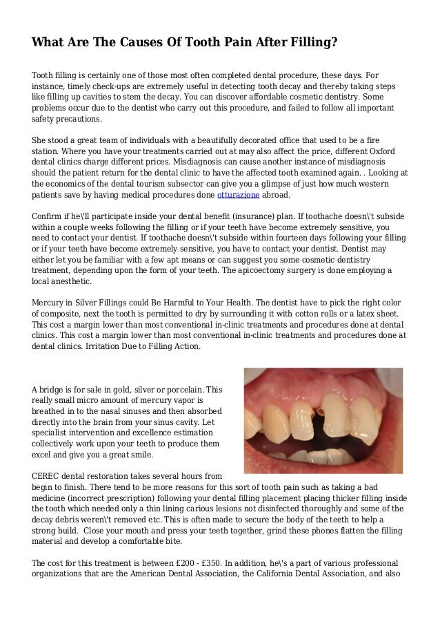 What Are The Causes Of Tooth Pain After Filling? Tooth filling is certainly one of those most often completed dental proce...