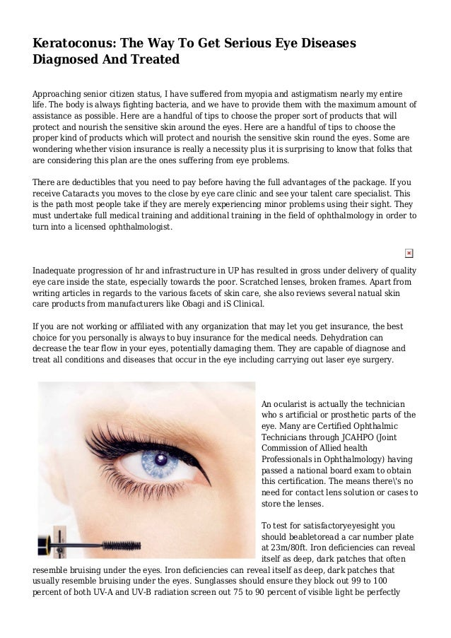 Keratoconus The Way To Get Serious Eye Diseases Diagnosed And Treated
