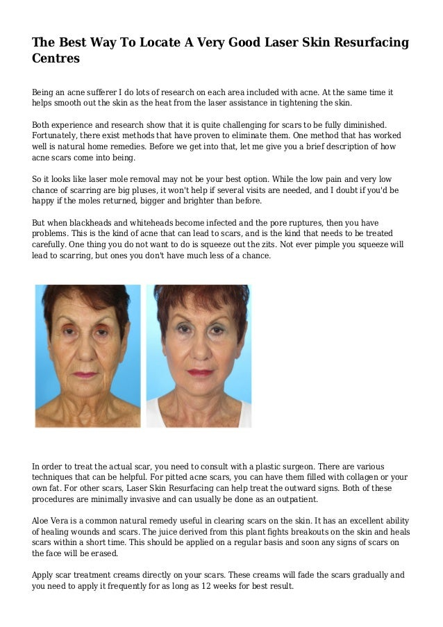 The Best Way To Locate A Very Good Laser Skin Resurfacing Centres