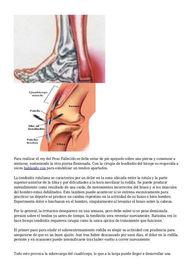 Tendinitis Tratamientos, Sintomas E Informacion En Dmedicina