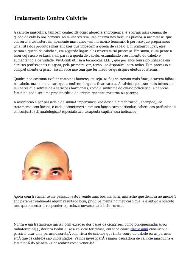 Tratamento Contra Calvicie A calvicie masculina, tambem conhecida como alopecia androgenica, e a forma mais comum de queda...