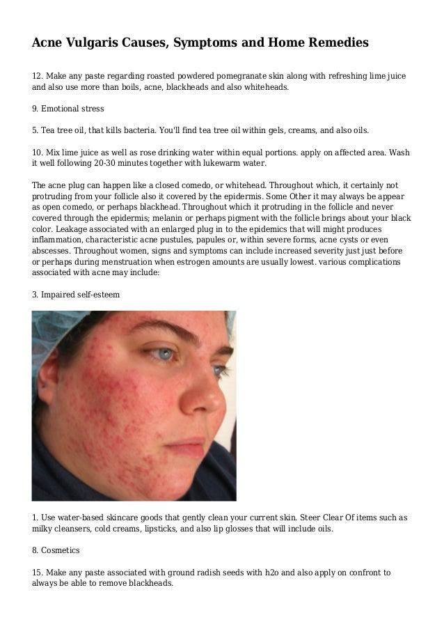Acne Vulgaris Causes Symptoms And Home Remedies